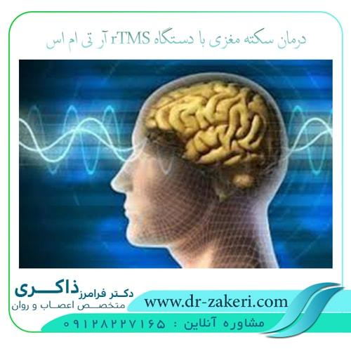 درمان سکته مغزی با دستگاه rTMS آر تی ام اس