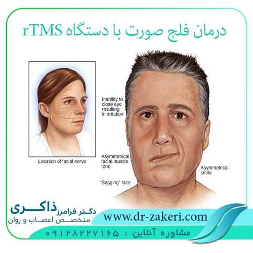 فلج عضلات صورت
