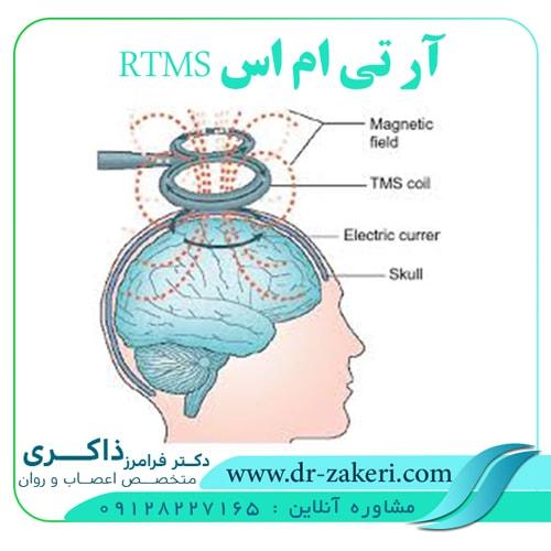 آر تی ام اس (RTMS)